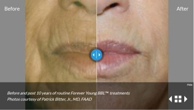 Forever Young Sciton Phototherapy BBL & IPL